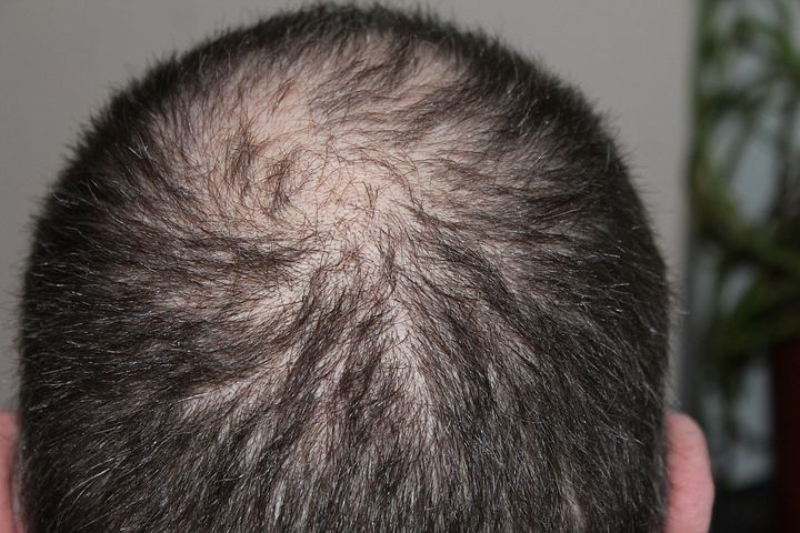Man trying some hair loss treatments